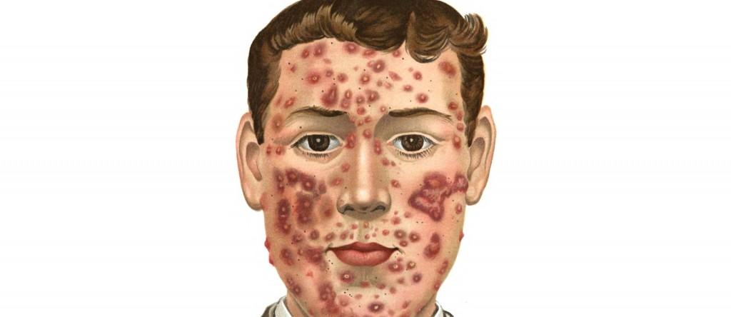 Akne und Krebs haben eine gemeinsame Ursache